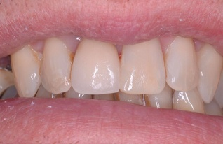 After - Auroradental
