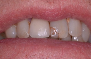 Before - Auroradental